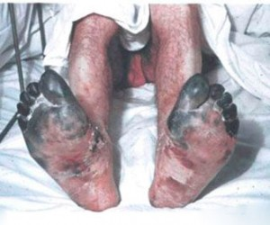У россиянина на отдыхе в Хорватии обнаружили редкую инфекцию