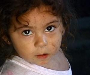Трехлетнего ребенка в Красносельском районе никто не избивал